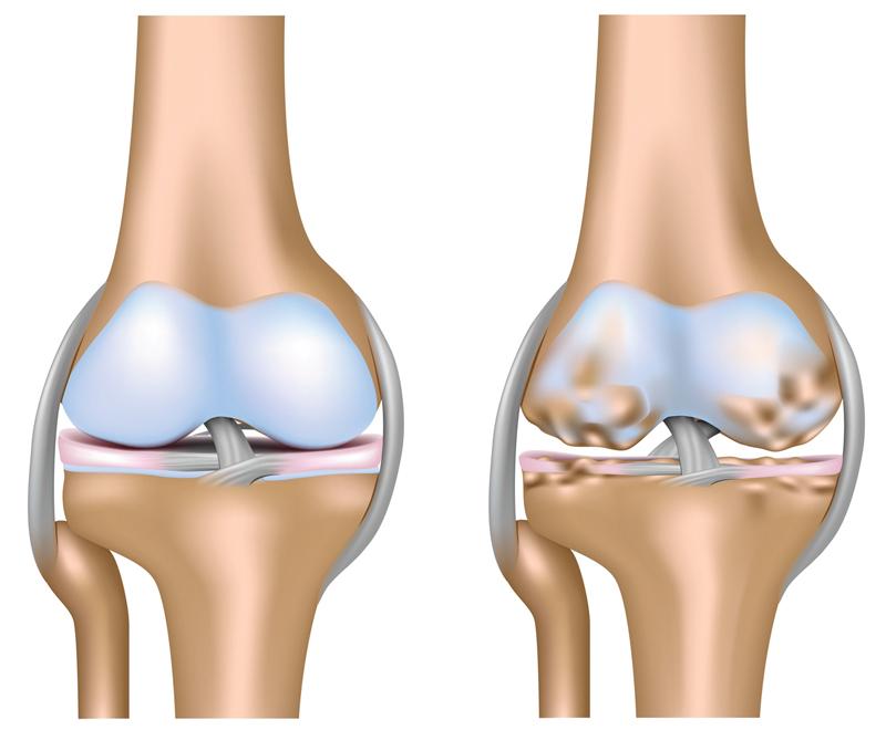 Pa kreisi – vesela locītava, pa labi – artrīts