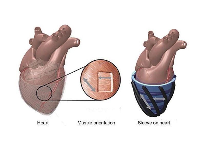 """Robota čaulas """"muskuļi"""" saraujas un izplešas līdzīgi kā sirds sitienu ietekmē."""