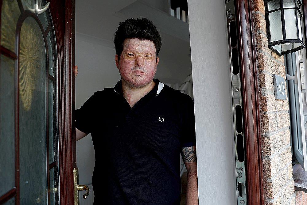 Skābes uzbrukuma upuris Andreass Kristofeross uz savas mājas sliekšņa Truro pilsētā Anglijas dienvidrietumos – tieši tur viņam uzbruka pēc durvju atvēršanas.