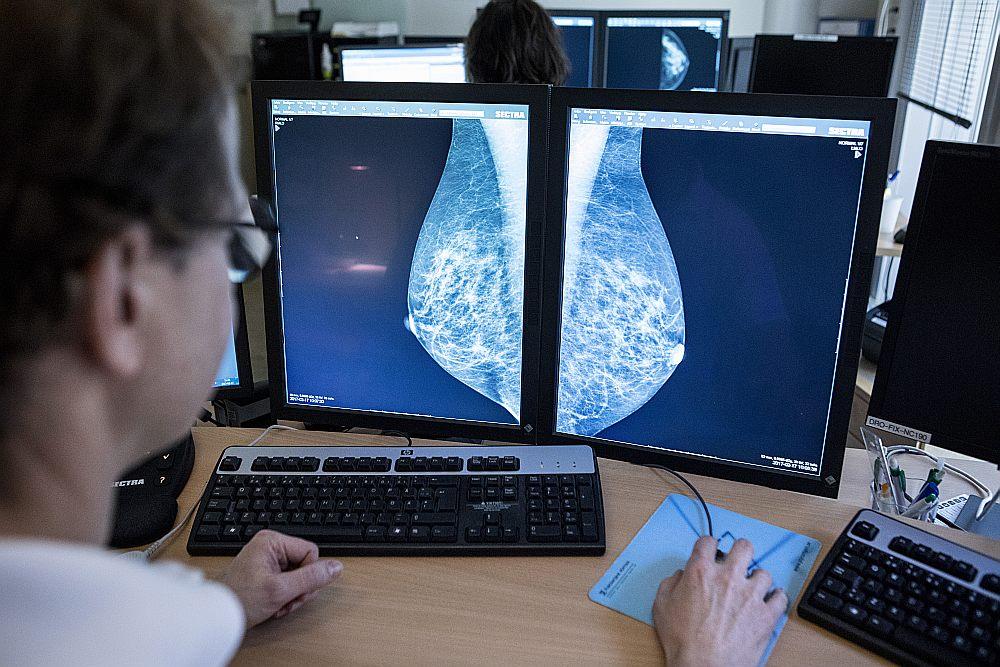 Ne visās 27 Latvijas ārstniecības iestādēs, ar kurām Nacionālajam veselības dienestam ir līgums par valsts apmaksāto pakalpojumu, ir kvalitatīvi mamogrāfi.
