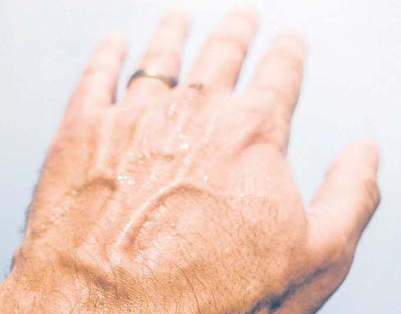 Par akromegāliju var liecināt fakts, ka ilgi bez problēmām valkāts gredzens sāk kļūt par šauru.