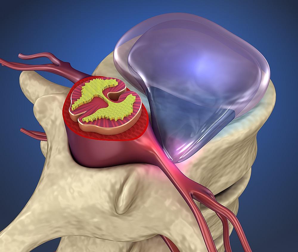 Ja mugurkaula skriemeļa diska gredzens plīst, mīkstais kodols izlaužas uz āru, nospiežot kādu no tuvumā esošajām nervu saknītēm.