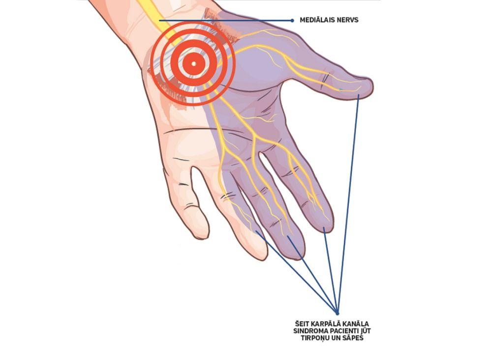 Karpālā kanāla sindroma pacienti jūt tirpoņu un smagumu lielākajā daļā plaukstas, var būt arī jušanas un kustību traucējumi.