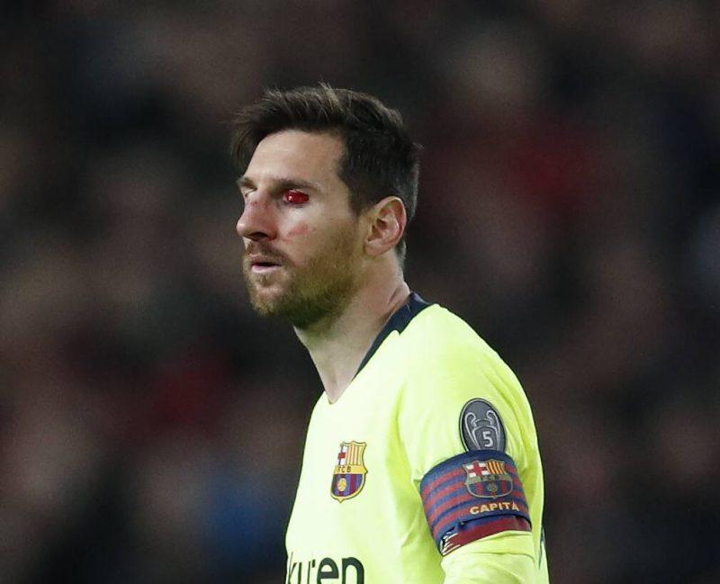 """Lionels Mesi spēlē pret Mančestras """"United"""" diezgan pamatīgi cieta, taču maču pabeidza."""