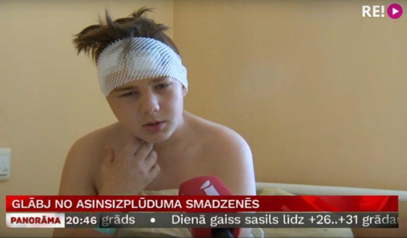 Daniels (13) pēc smadzeņu operācijas, kuras laikā no viņa galvas tika izgriezts apmēram centimetru liels veidojums.