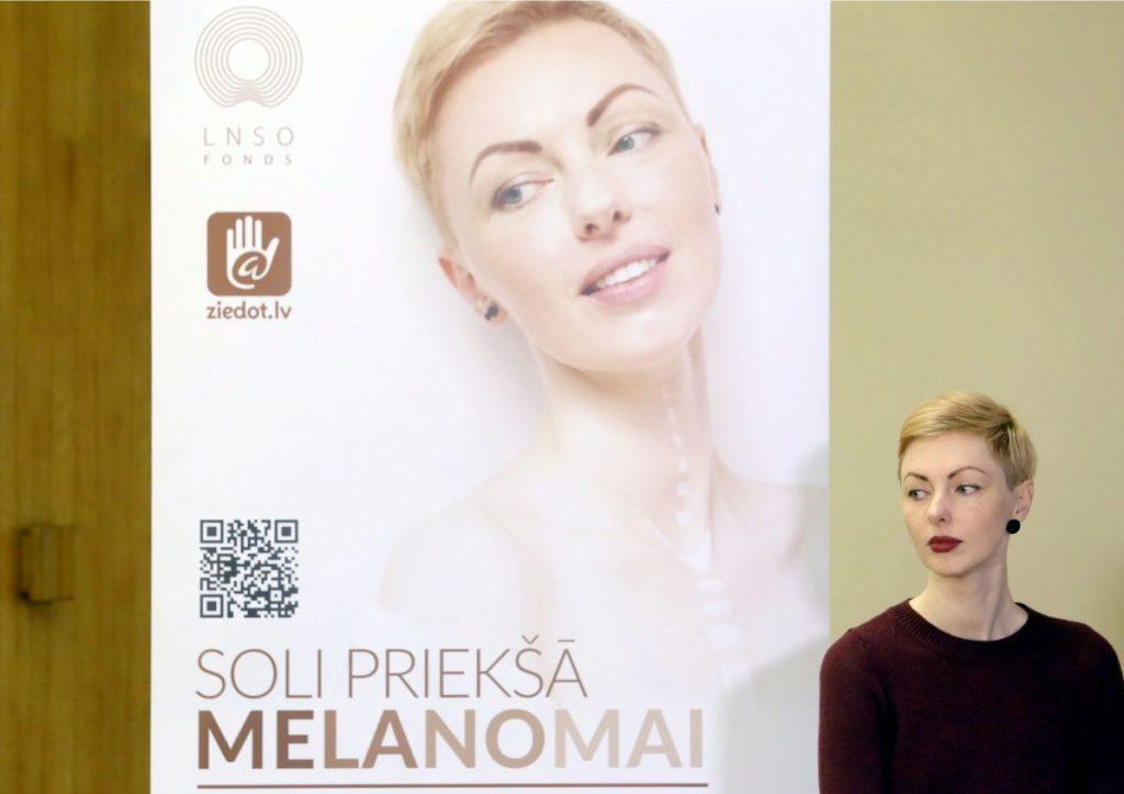 Melanomas paciente Sondra Zaļupe.