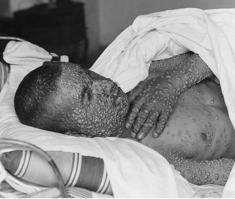 Kopš 1977. gada pasaulē vairs nav reģistrēti baku inficēšanās gadījumi dabiskā ceļā. Somālietis Alī Maalins bija pēdējais ar bakām inficētais cilvēks pasaulē, kurš sekmīgi izārstējās no slimības, bet mira 2013. gadā pēc inficēšanās ar malāriju. Pasaules veselības organizācija 1980. gada maijā svinēja uzvaru pār bakām. Attēlā: baku slimnieks Palestīnā, fotografēts periodā starp 1900.–1925. g.